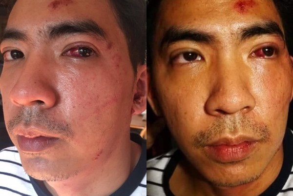 The grab driver was beaten by the passenger after returning his phone at the wee hours of the morning. [Image Credit: Kiel Nigel Yabut / Facebook]